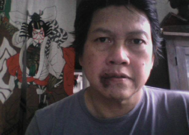 Picture: Attacked Filipino businessman: I feel that I am not the real victim, it's Lithuanian society