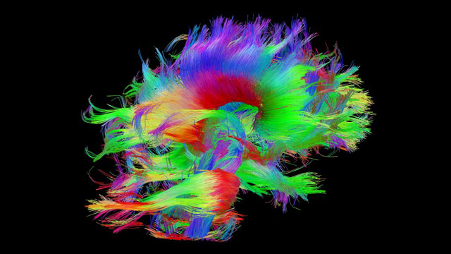 One image showing the white matter fiber architecture of the brain measured from the diffusion spectral imaging (DSI) of the Connectome Scanner dataset. Image via www.humanconnectomeproject.org