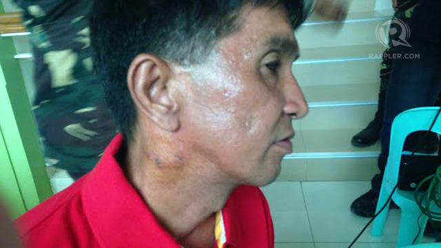 HURT CIVILIAN. Arnel Valleroso, 42, a disaster management responder who was hurt in communist guerilla's landline attack in Davao del Sur, is not satisfied with statement apology. Photo by Carmela Fonbuena/Rappler